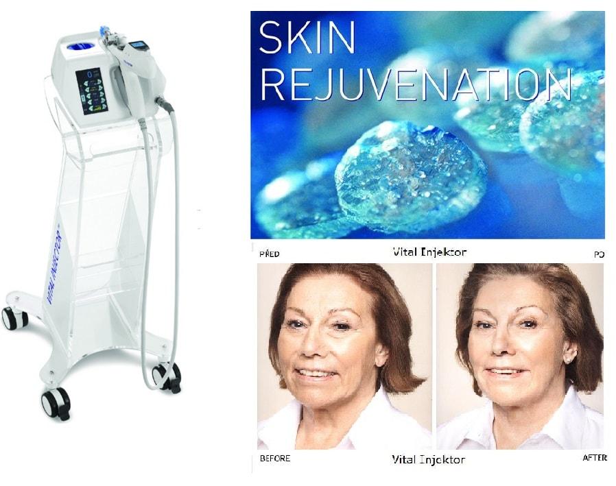 Ultimate SKin Rejuvenation